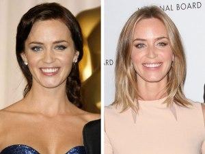 Emily-Blunt-Before-After-Dental-Veneers