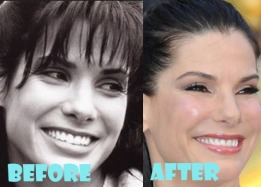 Sandra-Bullock-Plastic-Surgery-Nose-Job