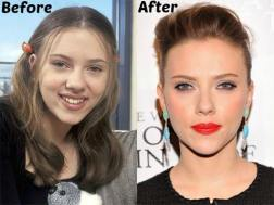 Scarlett-Johansson-Nose-Job